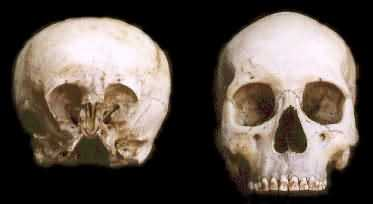 Klicken Sie auf die Grafik für eine größere Ansicht  Name:skull_sc2.jpg Hits:34 Größe:6,3 KB ID:1606